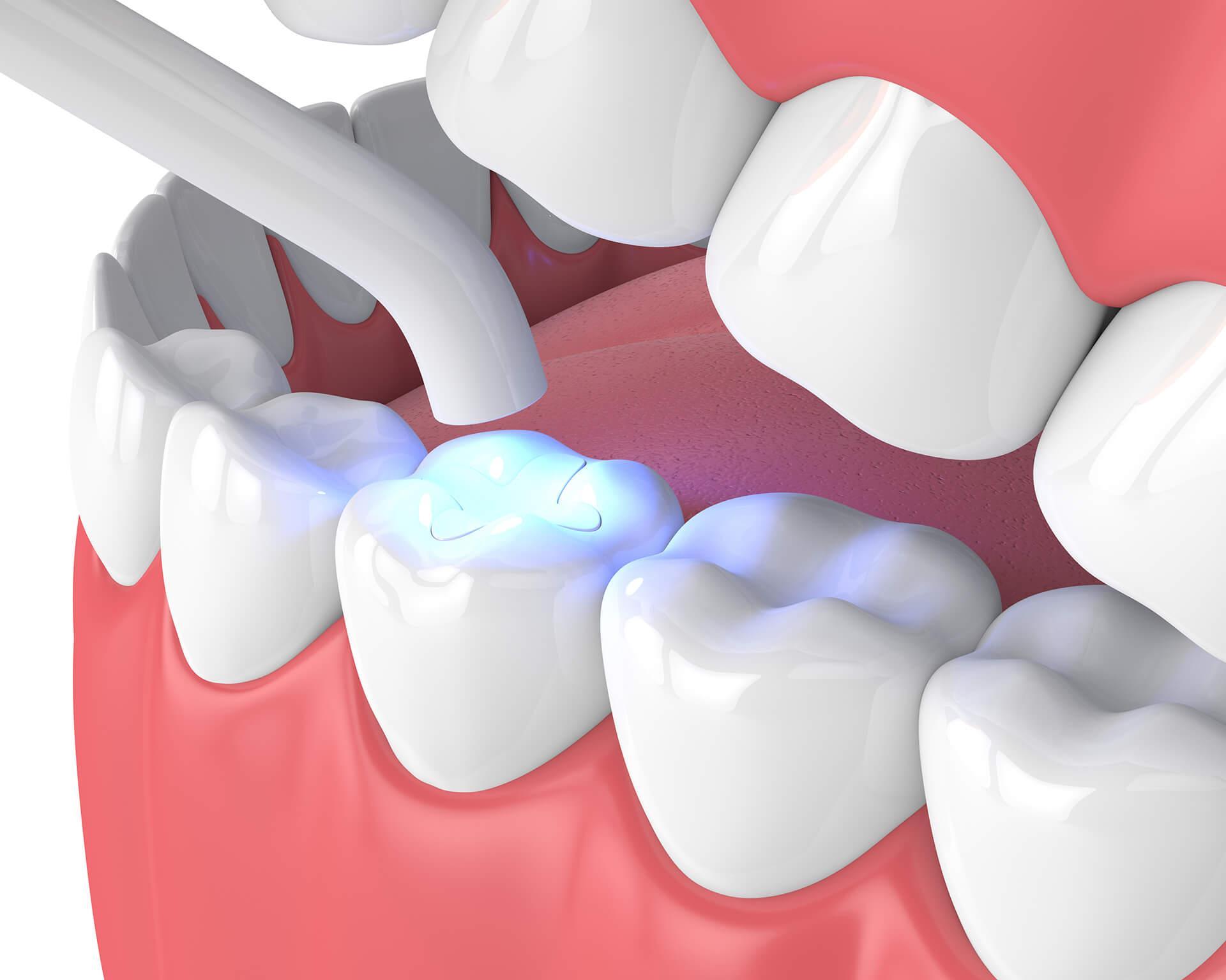 dental sealants san jose ca