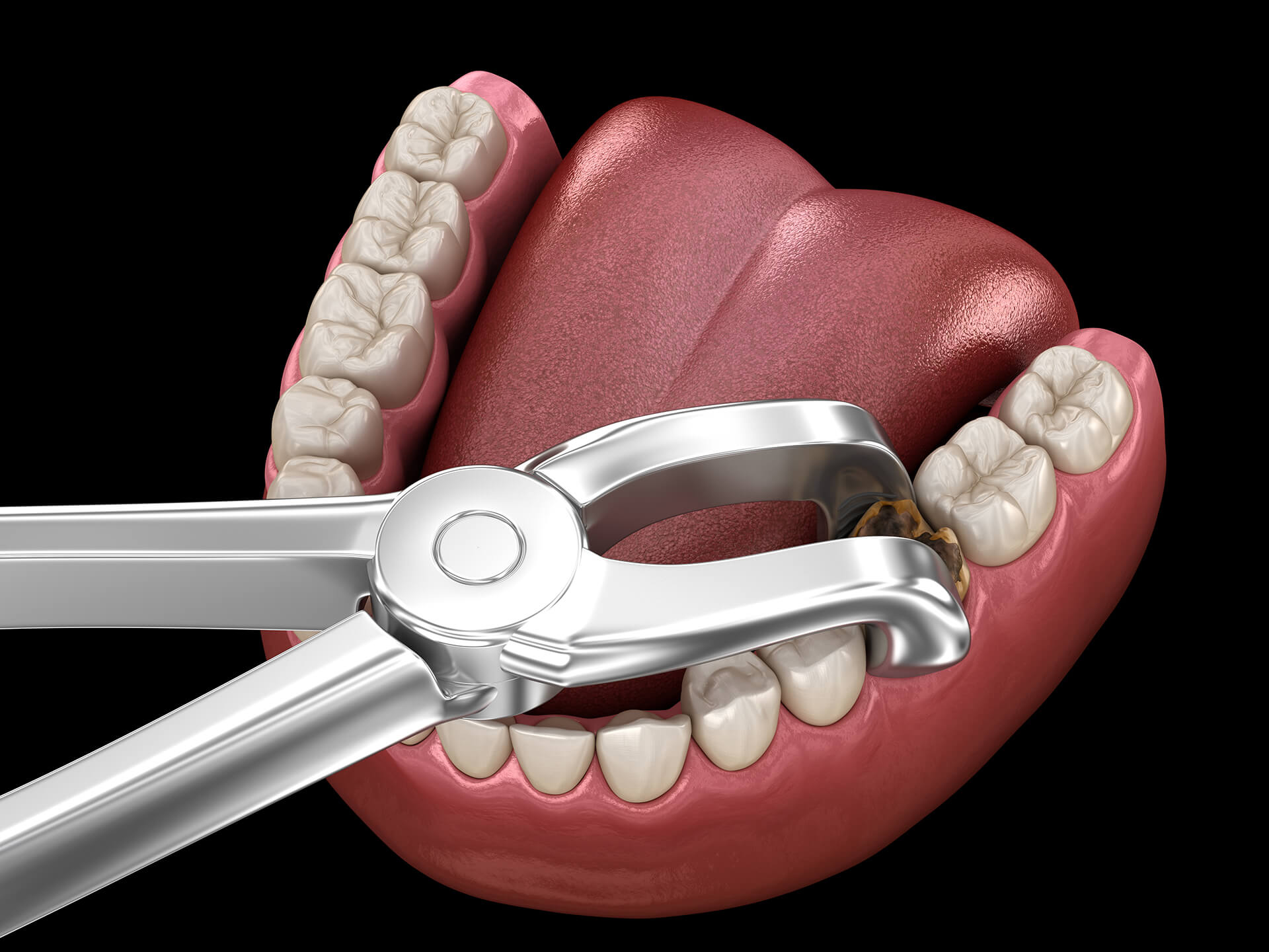 tooth extraction san jose ca