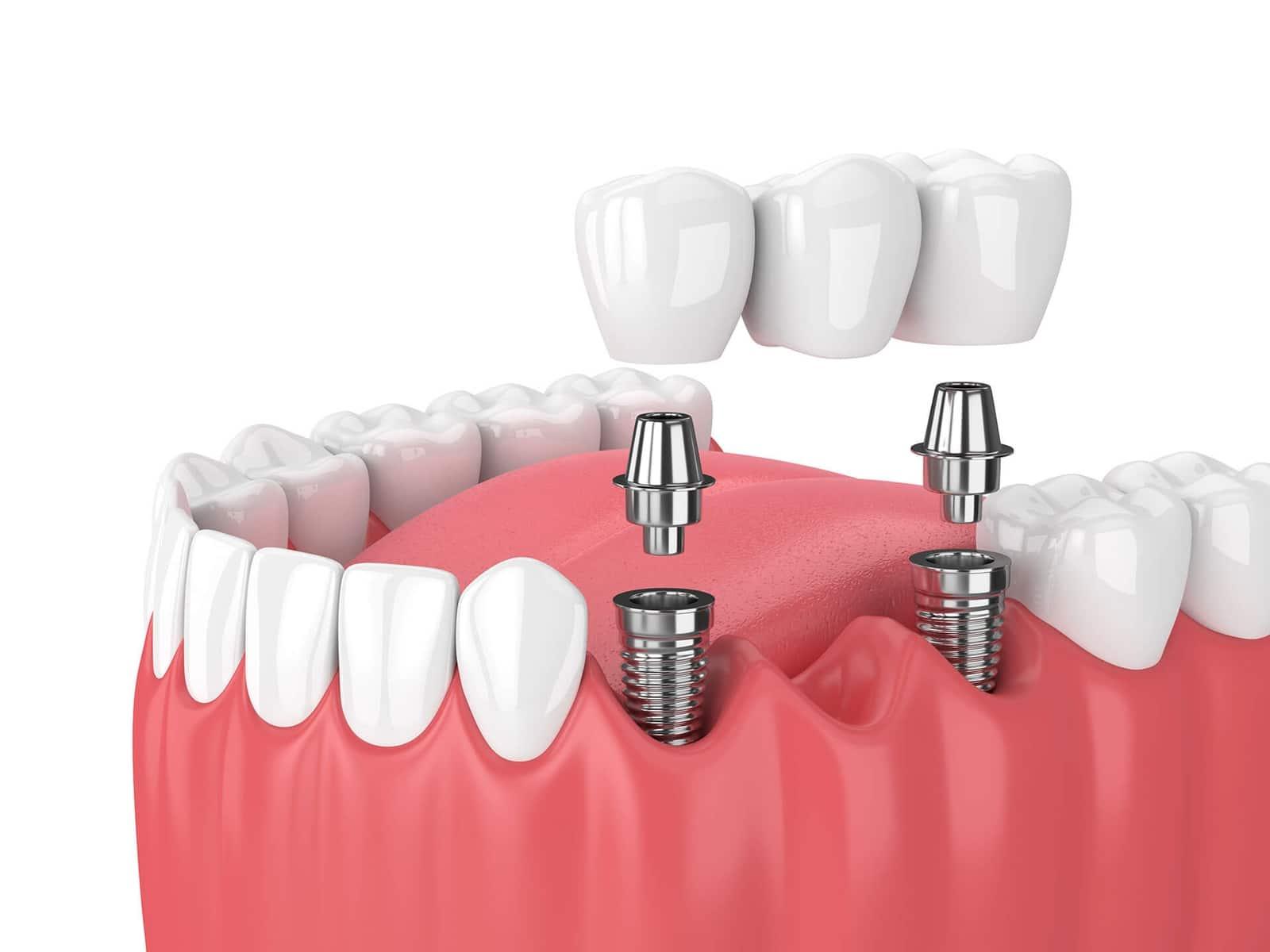 dental implants san jose ca