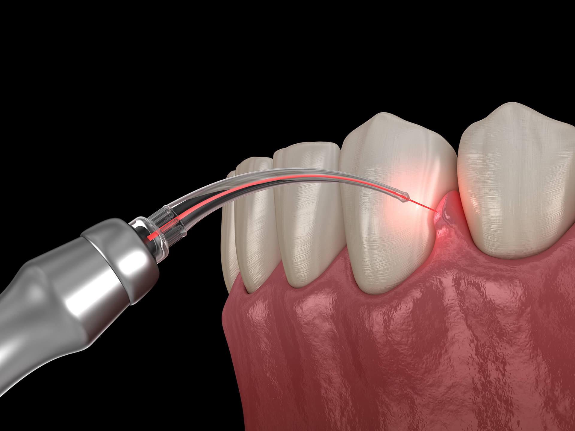 laser dentistry san jose ca