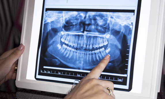 Dental-Xrays
