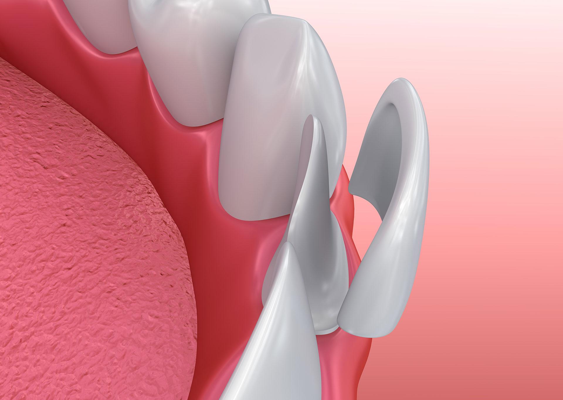 porcelain dental veneers san jose ca