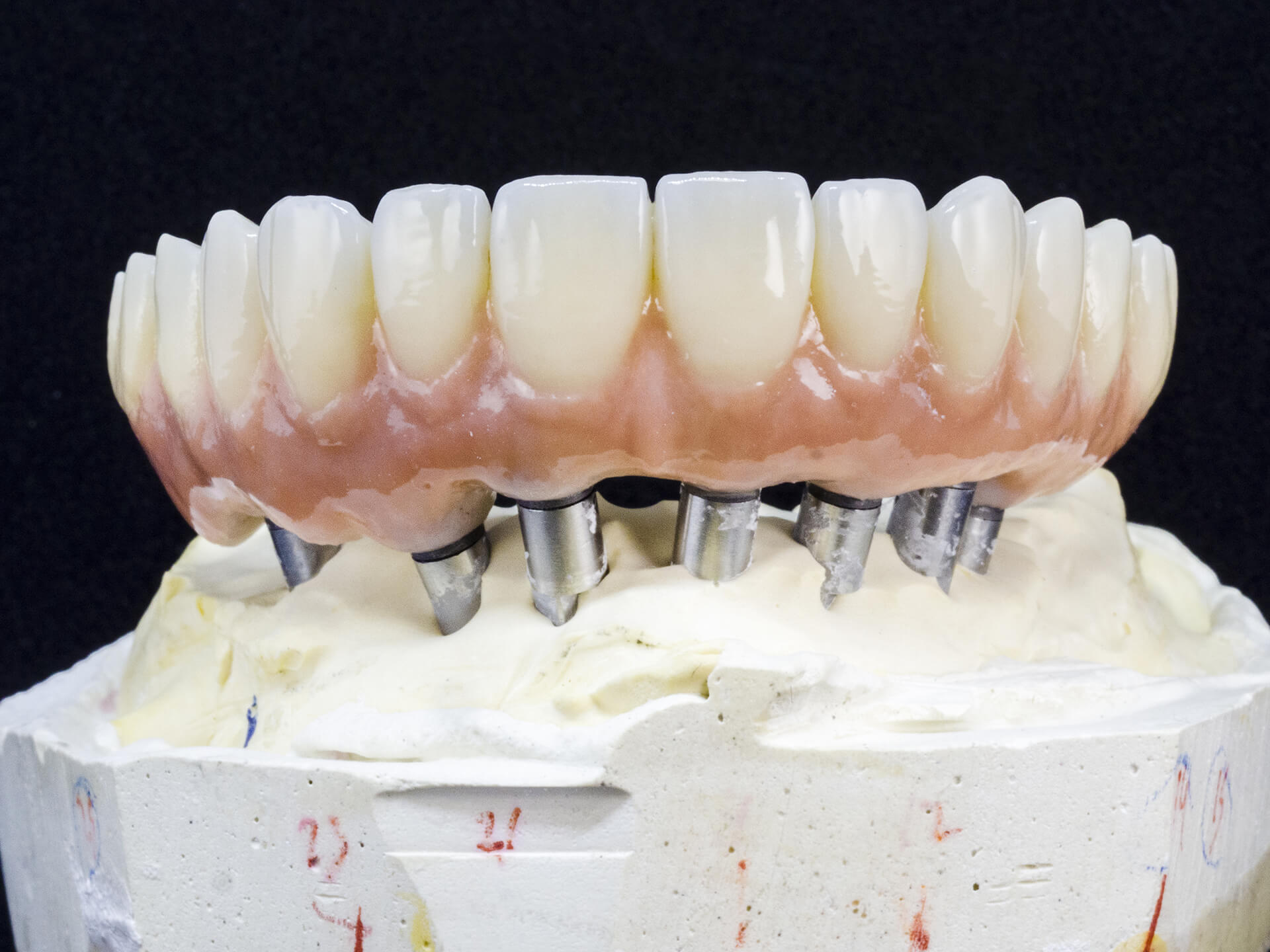 implant supported dentures san jose