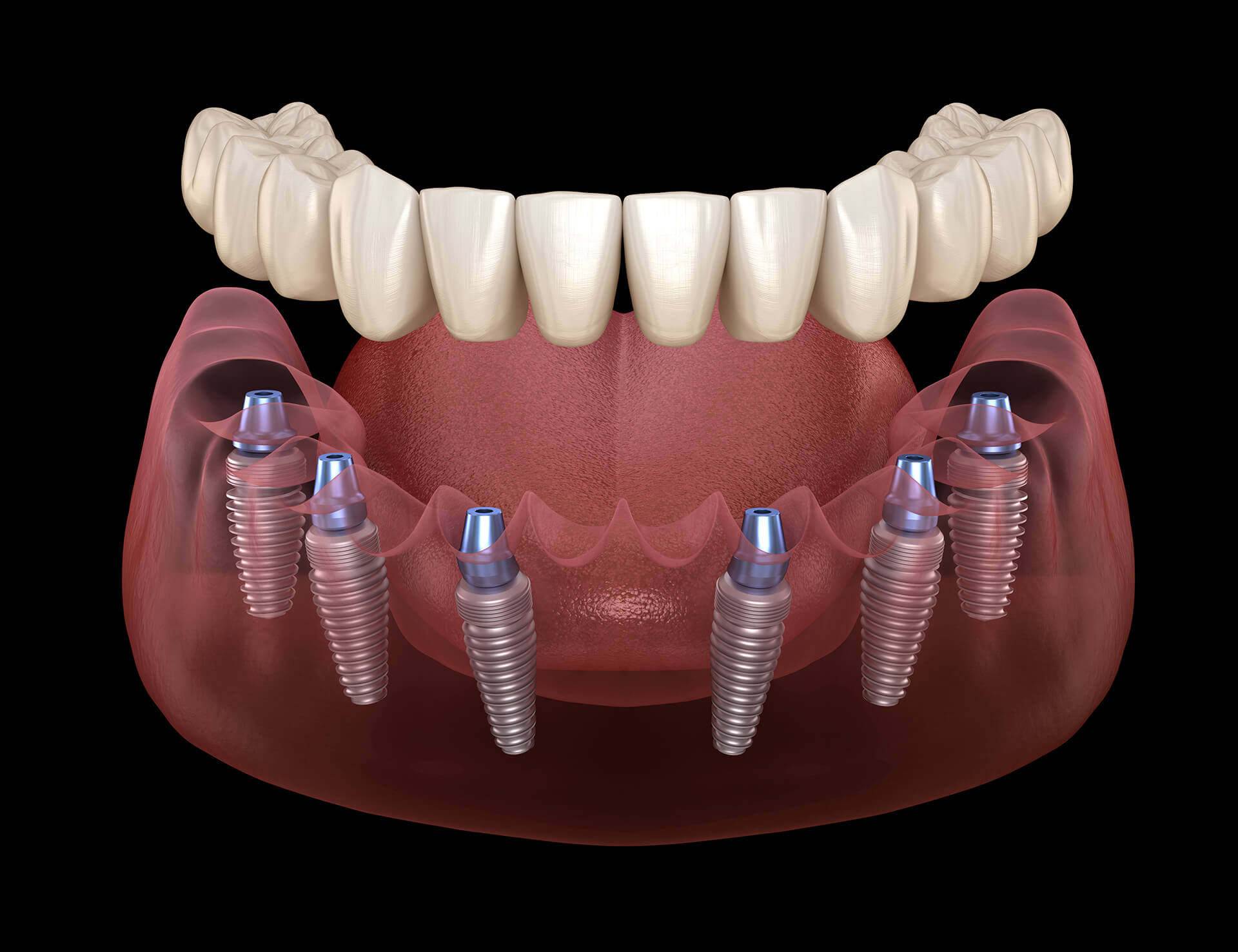implant supported dentures san jose ca