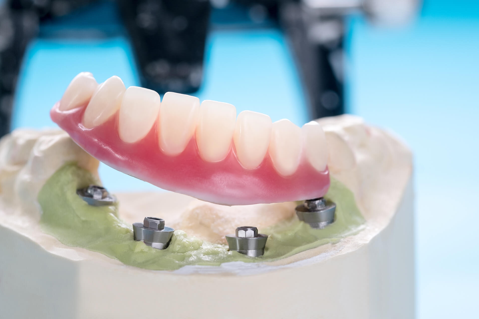 implant supported dentures in san jose ca