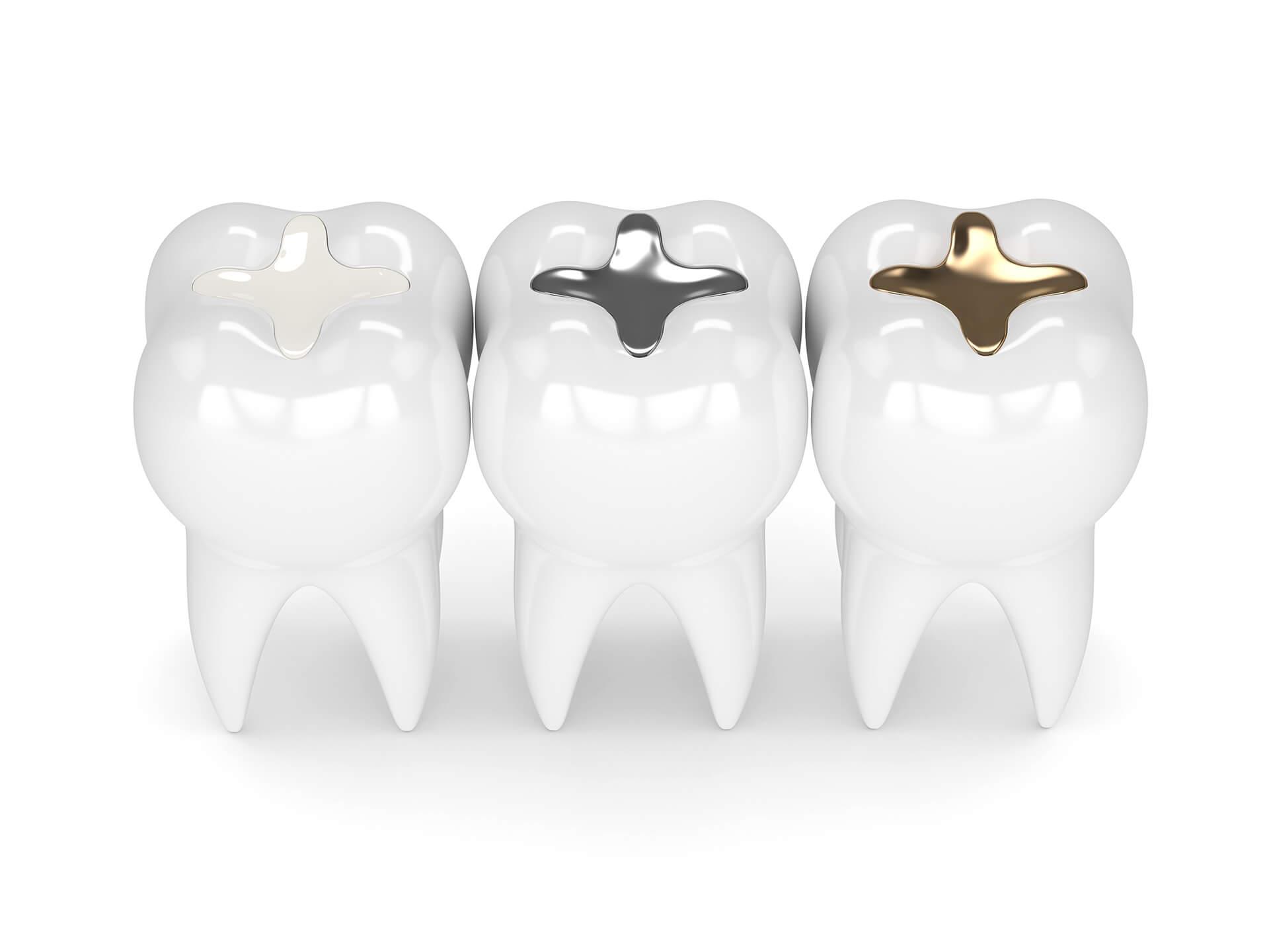 dental filling in san jose ca