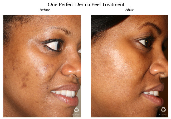 Dermapeel before and after 1