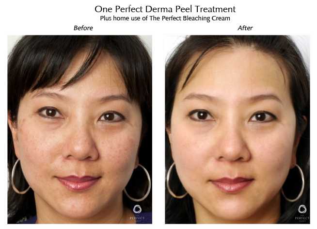 Dermapeel before and after 2