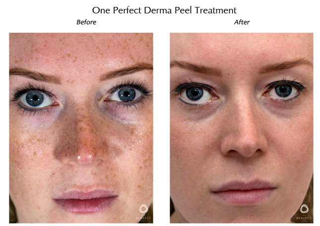Dermapeel before and after 3