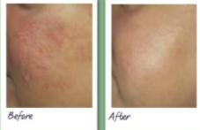 Laser vein therapy before and after 1