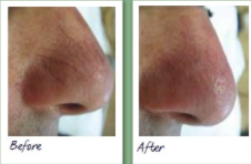 Laser vein therapy before and after 2