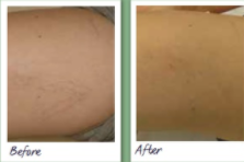Laser vein therapy before and after 3