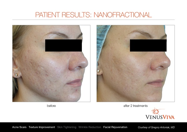 Venus Viva before and after 1