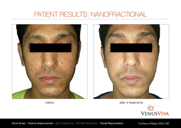 Venus Viva before and after 2