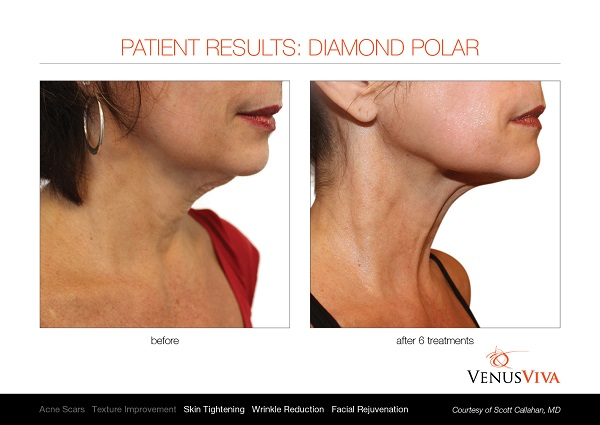 Venus Viva before and after 3
