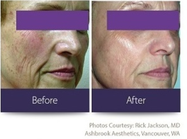 Fractional Laser Treatment Before and After Photo