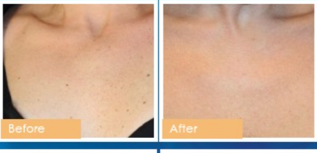 IPL Photofacial Before and After Photo