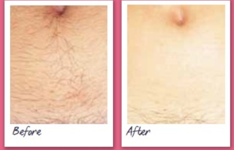 Laser Hair Removal Before and After Photo