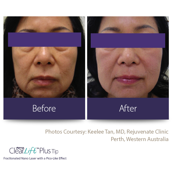 Clearlift Before and after 1