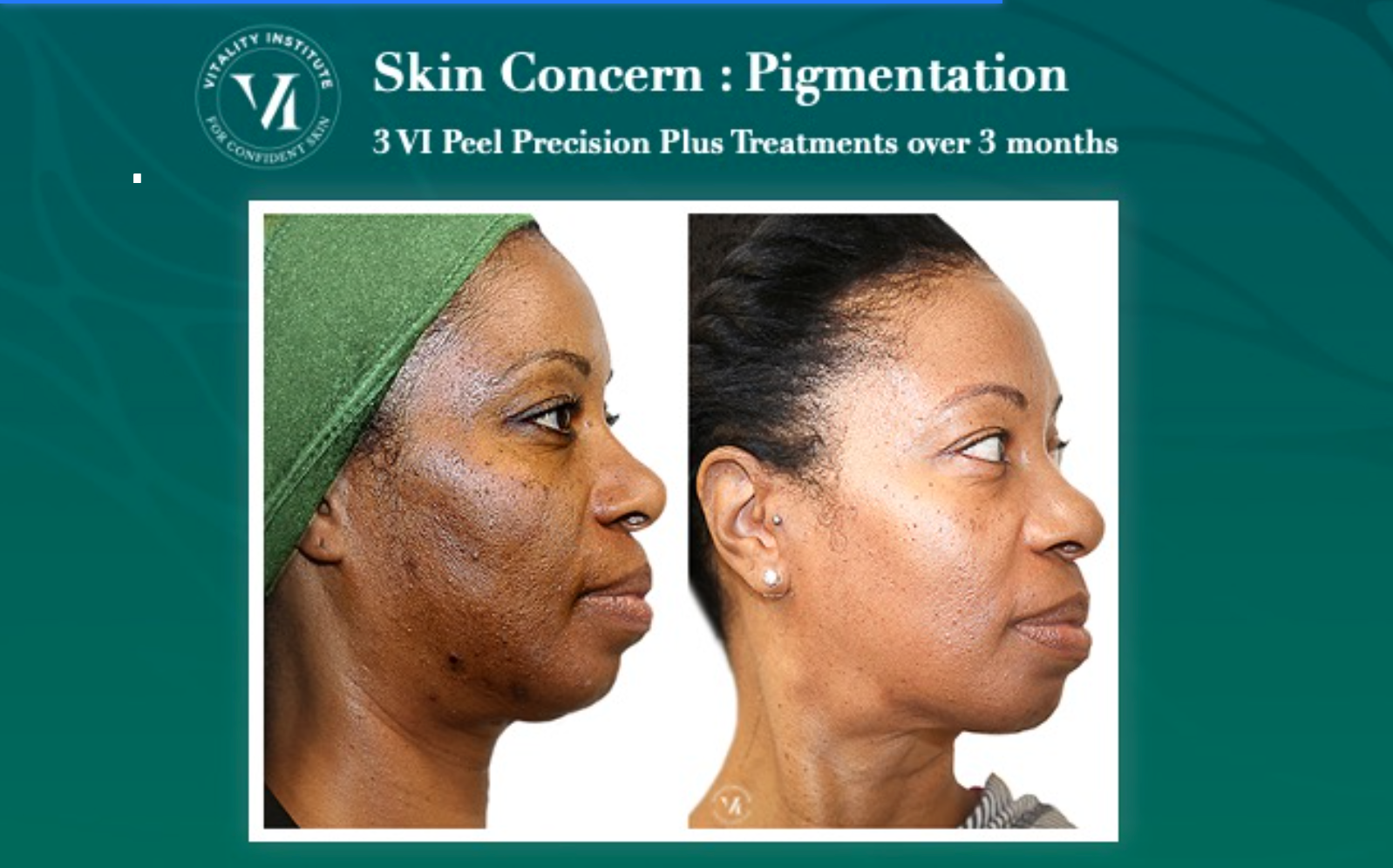 VI Peel Before and After 1
