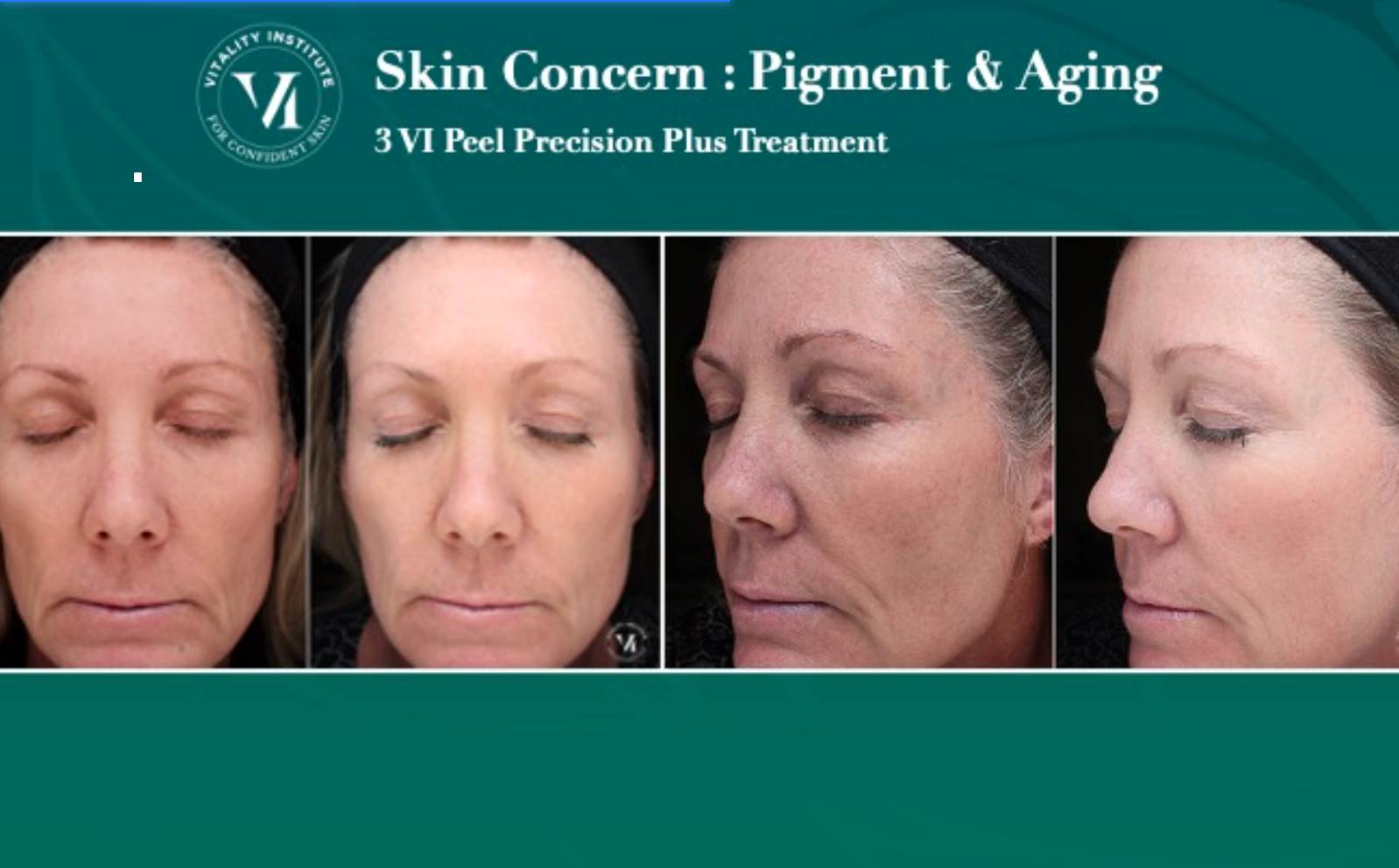 VI Peel Before and After 3