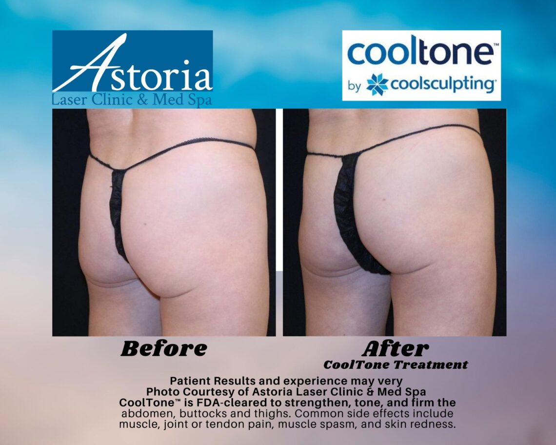CoolTone before and after 1