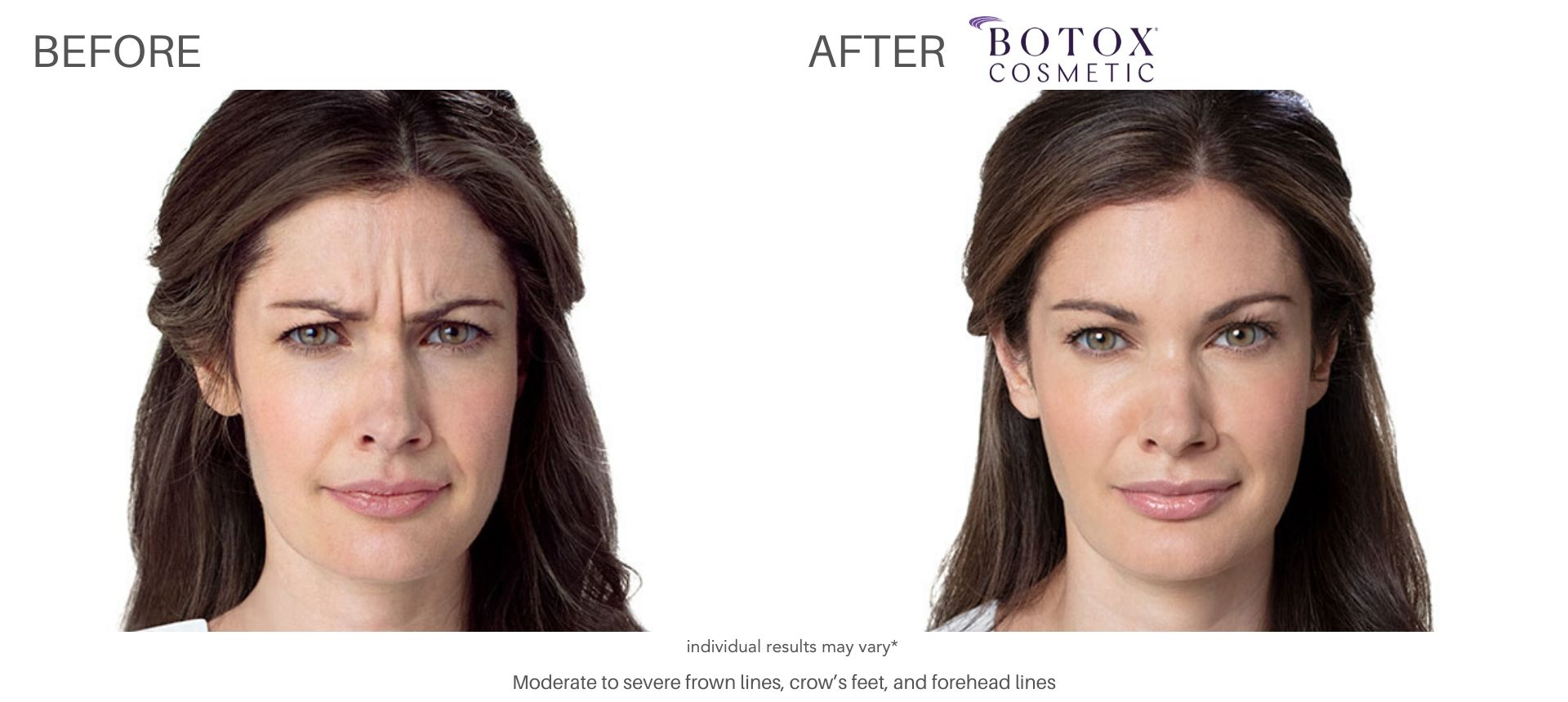 Botox before and after 1