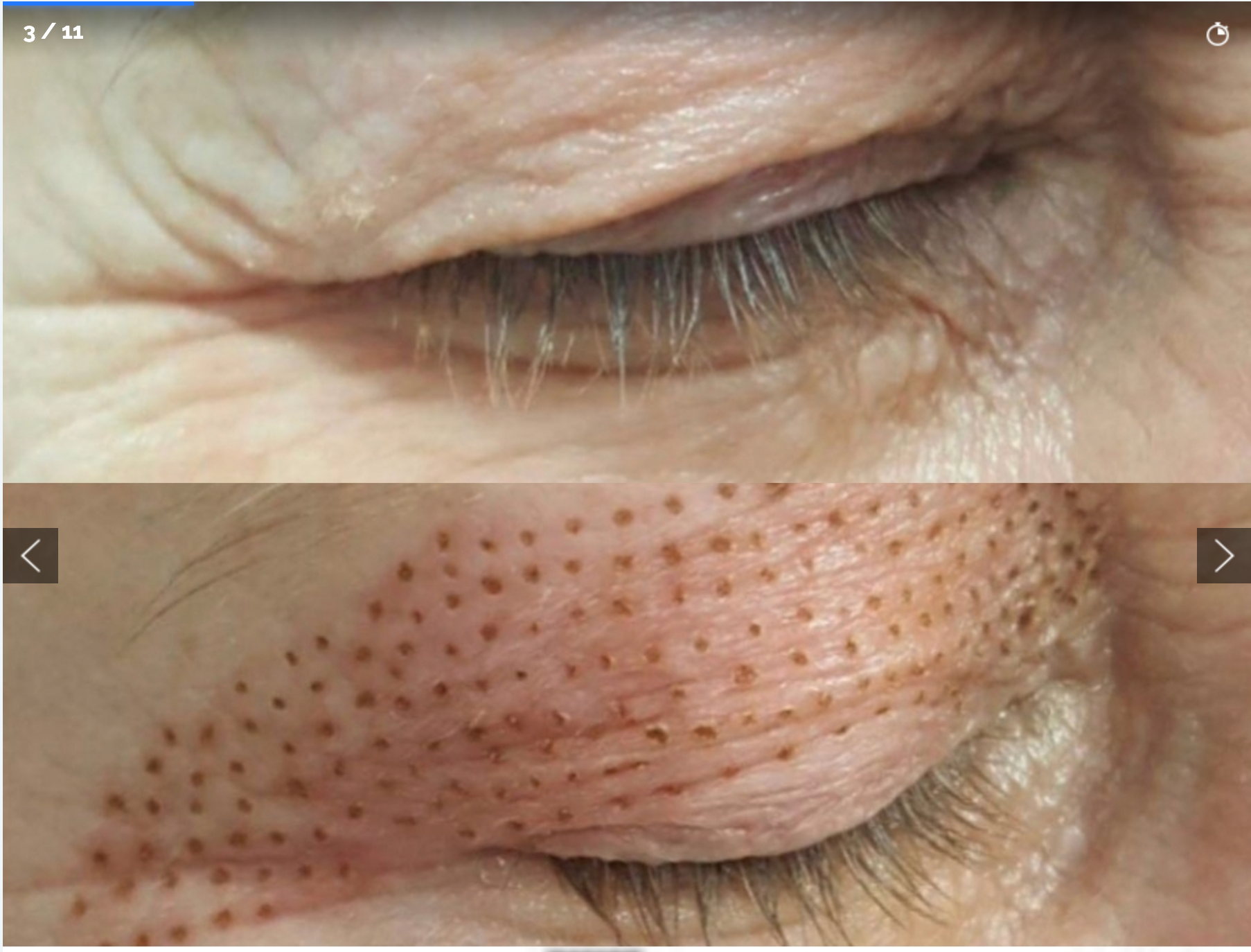 Fibroblast Plasma Pen Before and After 1