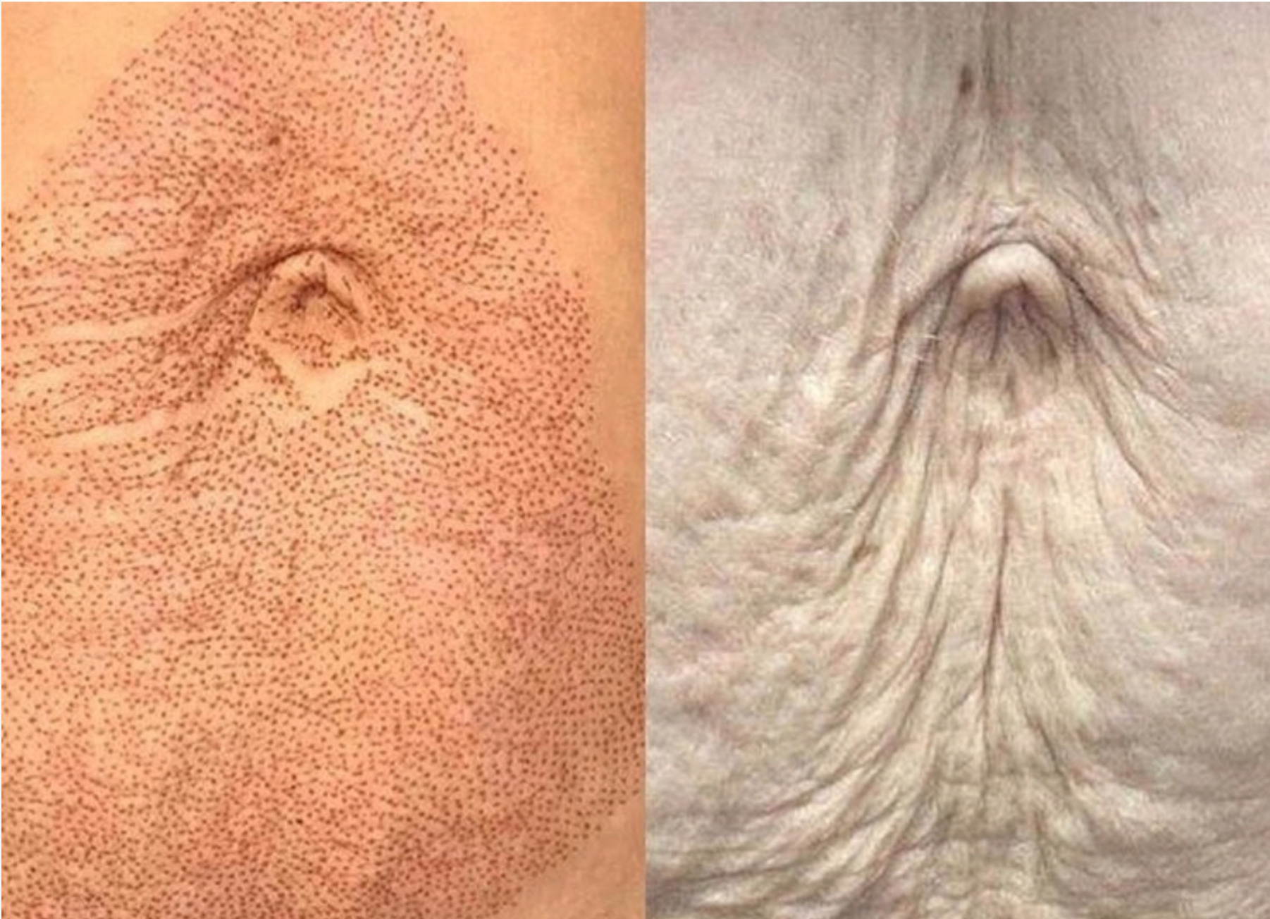 Fibroblast Plasma Pen Before and After 2