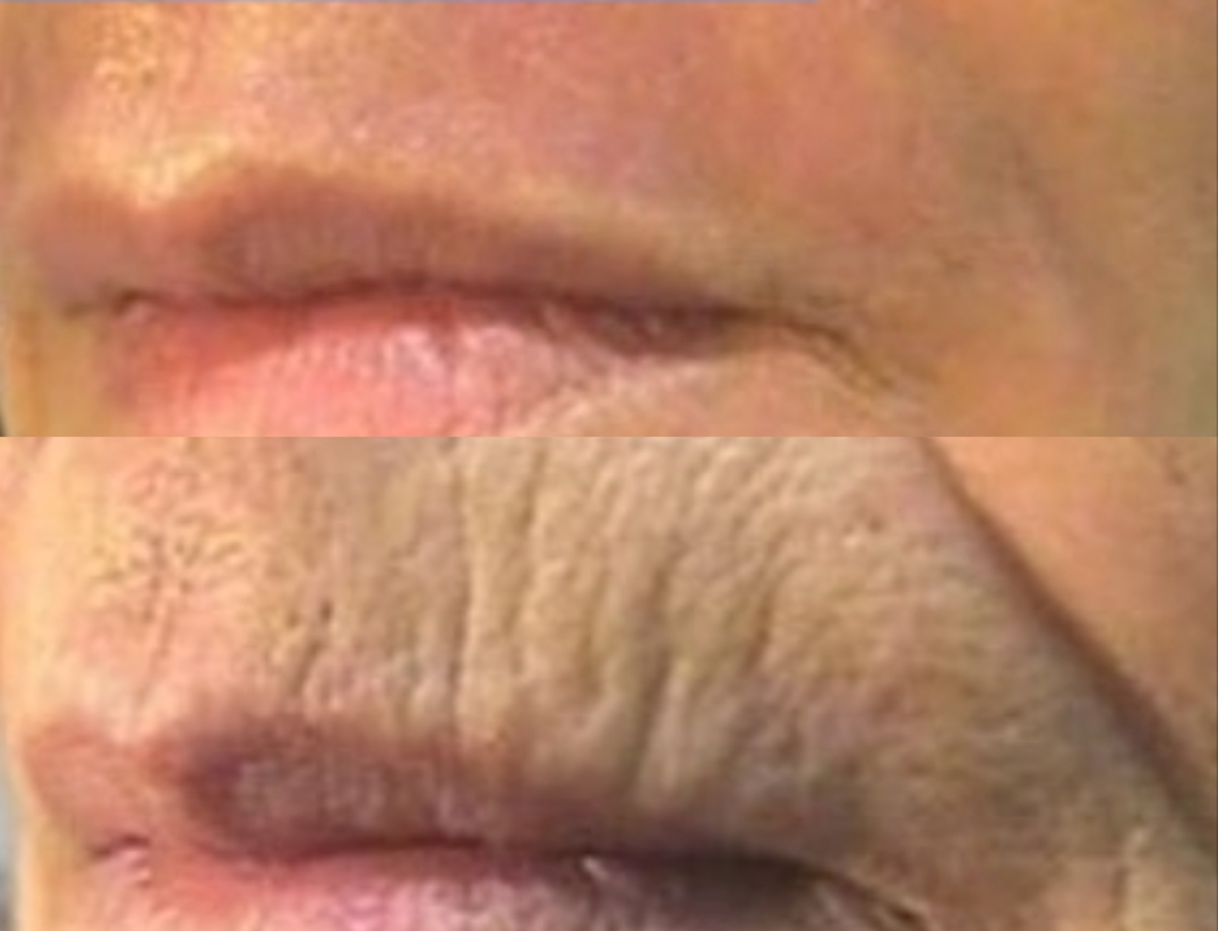 Fibroblast Plasma Pen Before and After 3