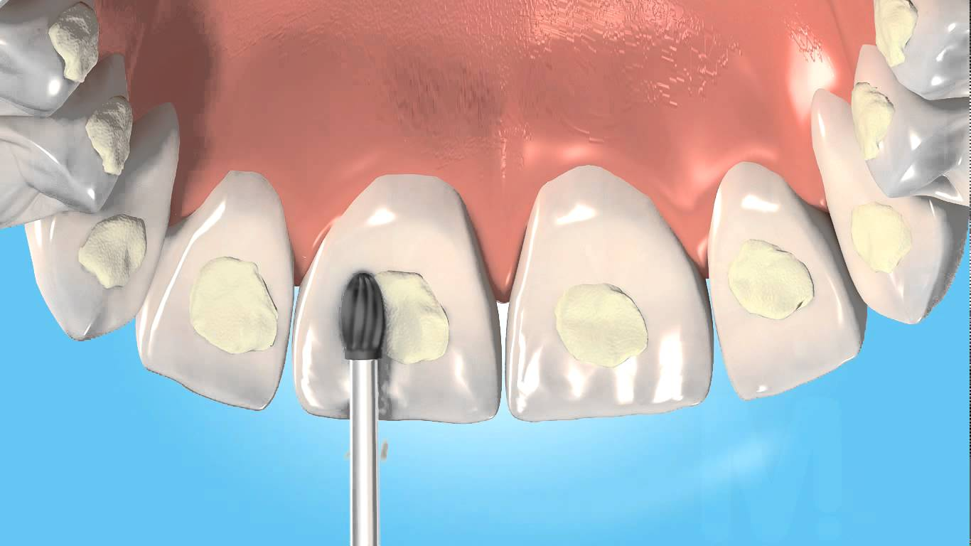 20 - Adhesive denta materials
