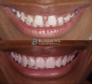 Invisalign and Veneers Before and After
