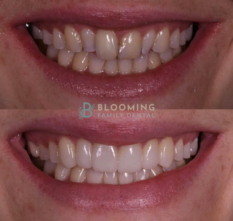 Esthetic, before and after photo
