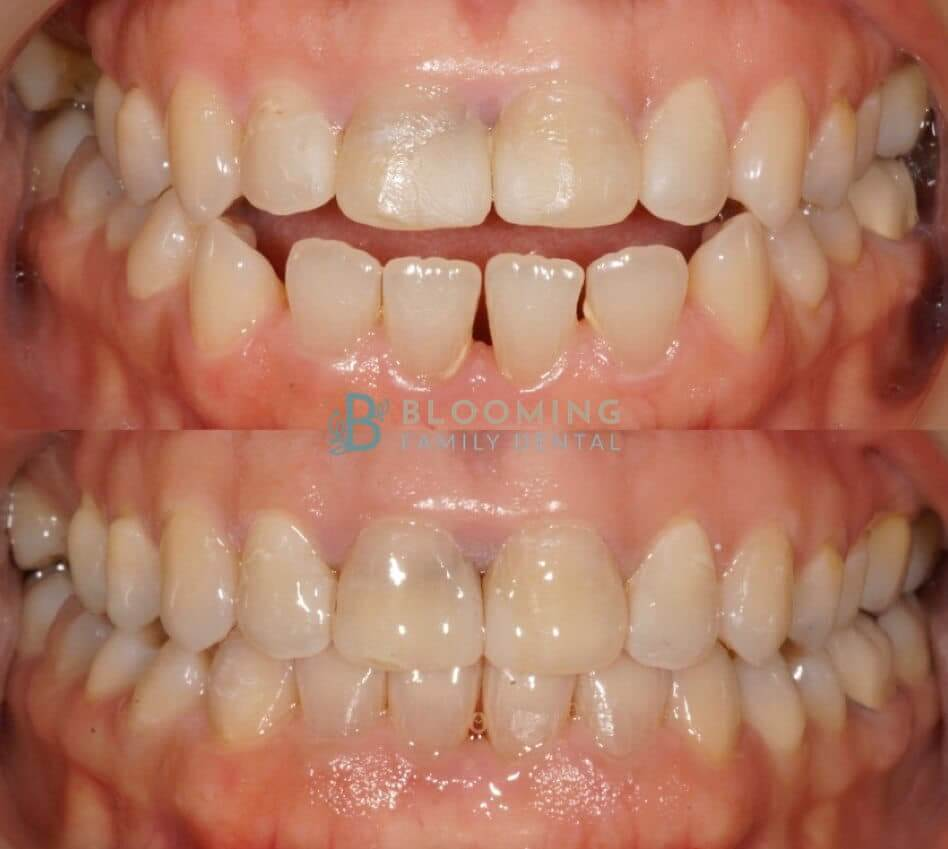 Invisalign, before and after photo