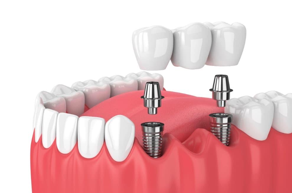 Dental Implants : Bridge