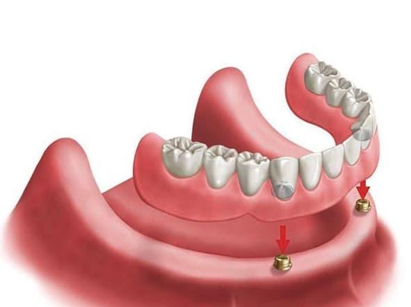 Dental Implants All on 4