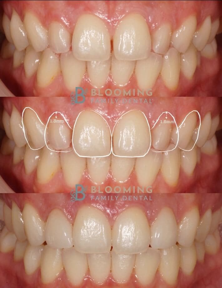 Blomming Dental Before and After