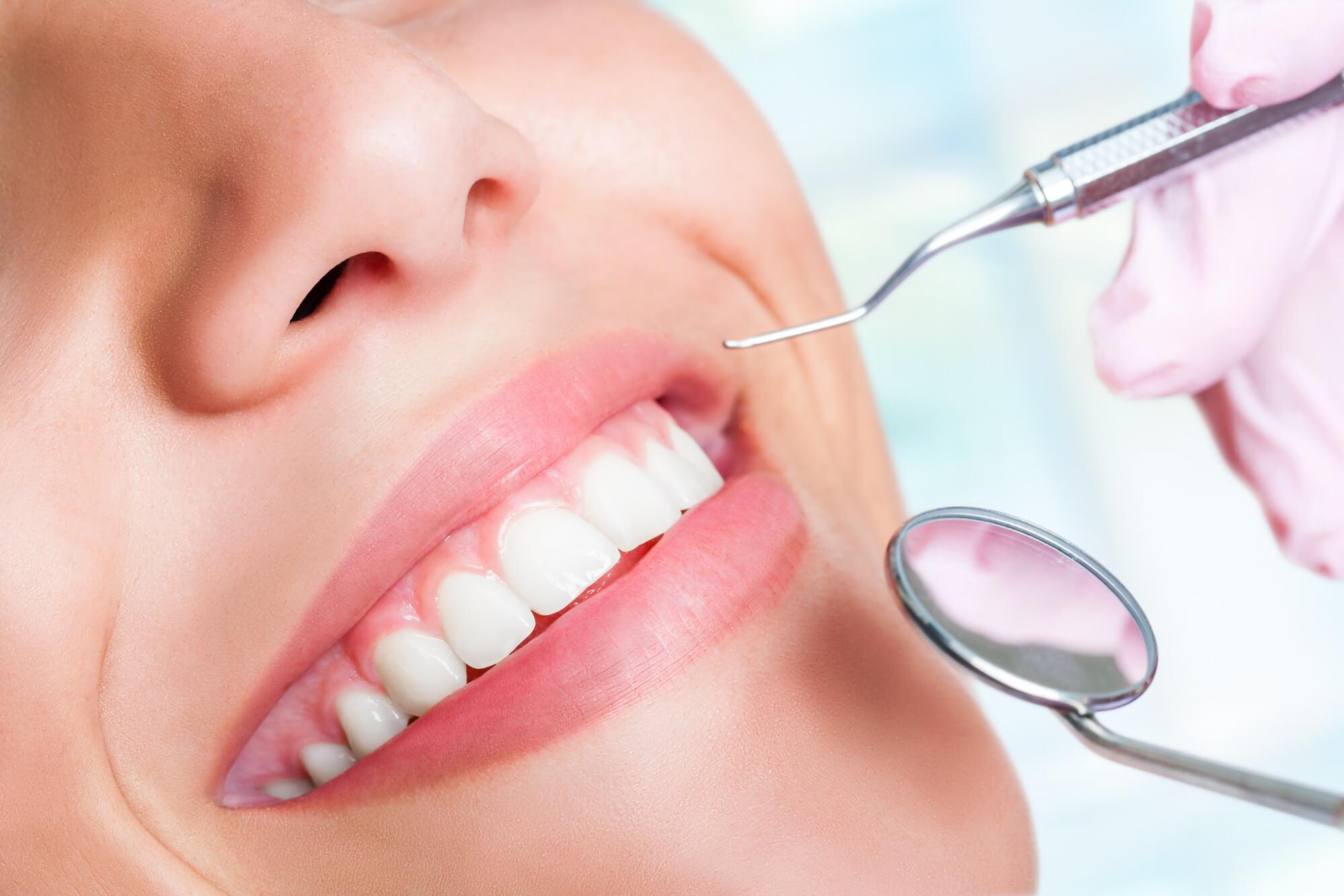dental implants in Plano