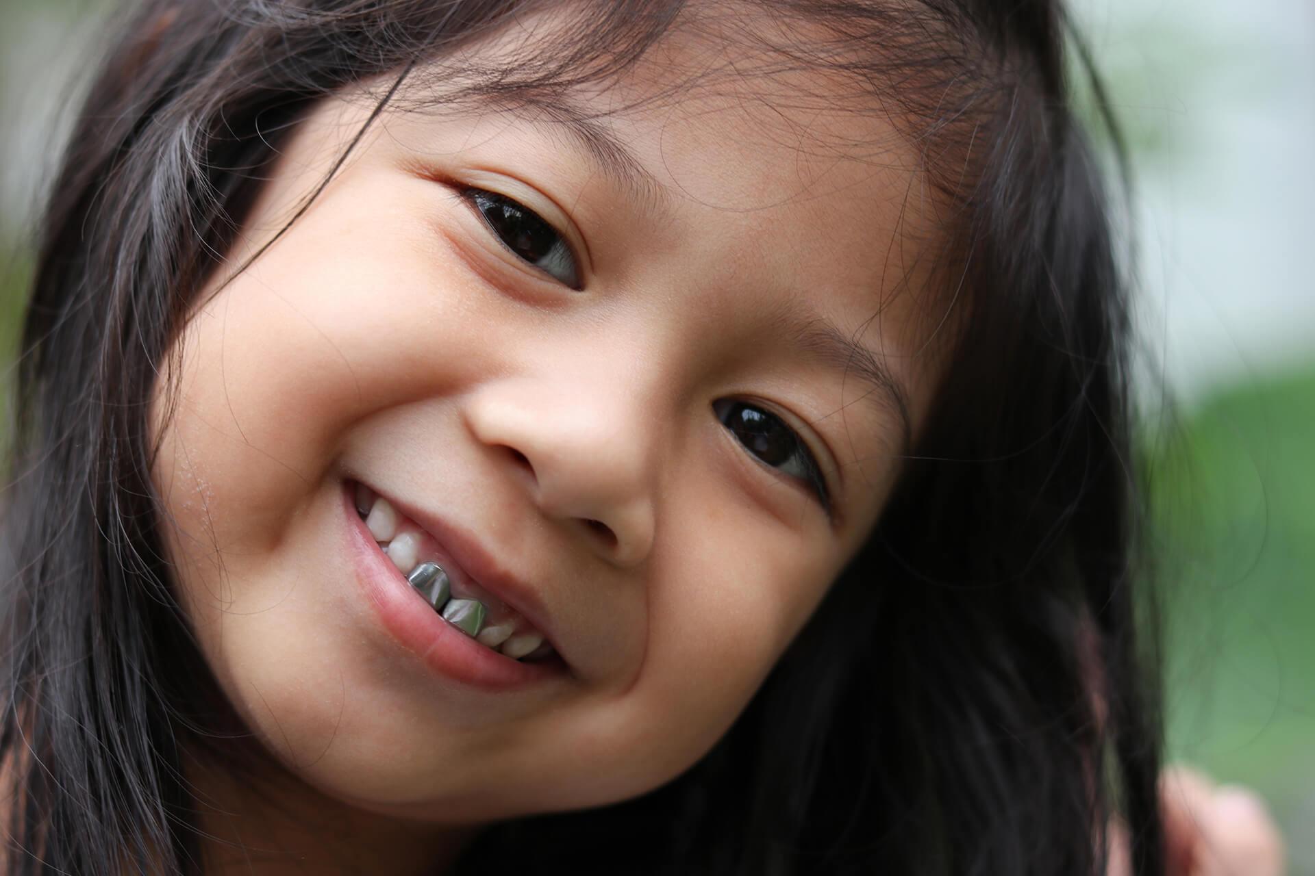 pediatric dental crowns for child in lafayette ca