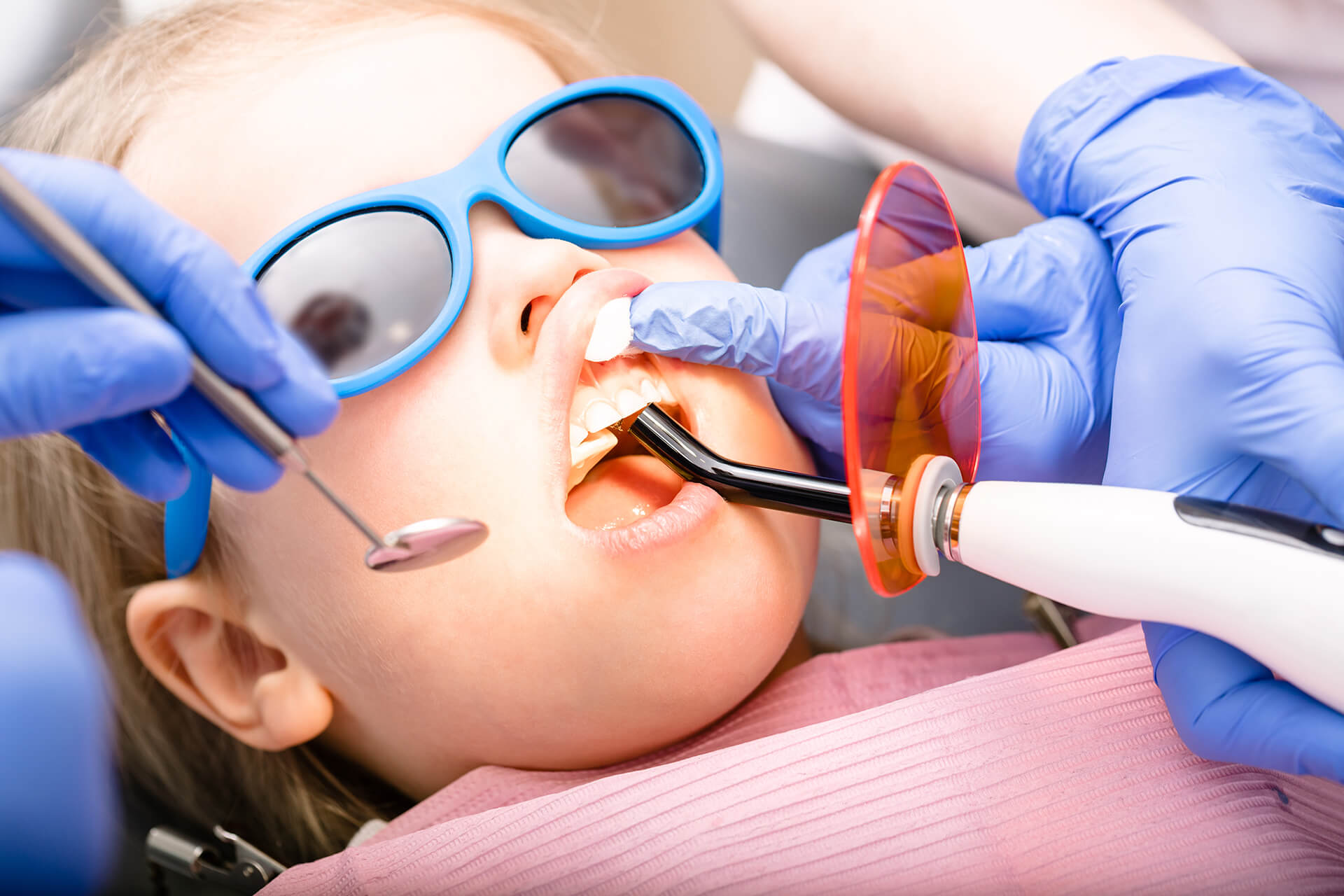 pediatric tooth fillings in lafayette ca
