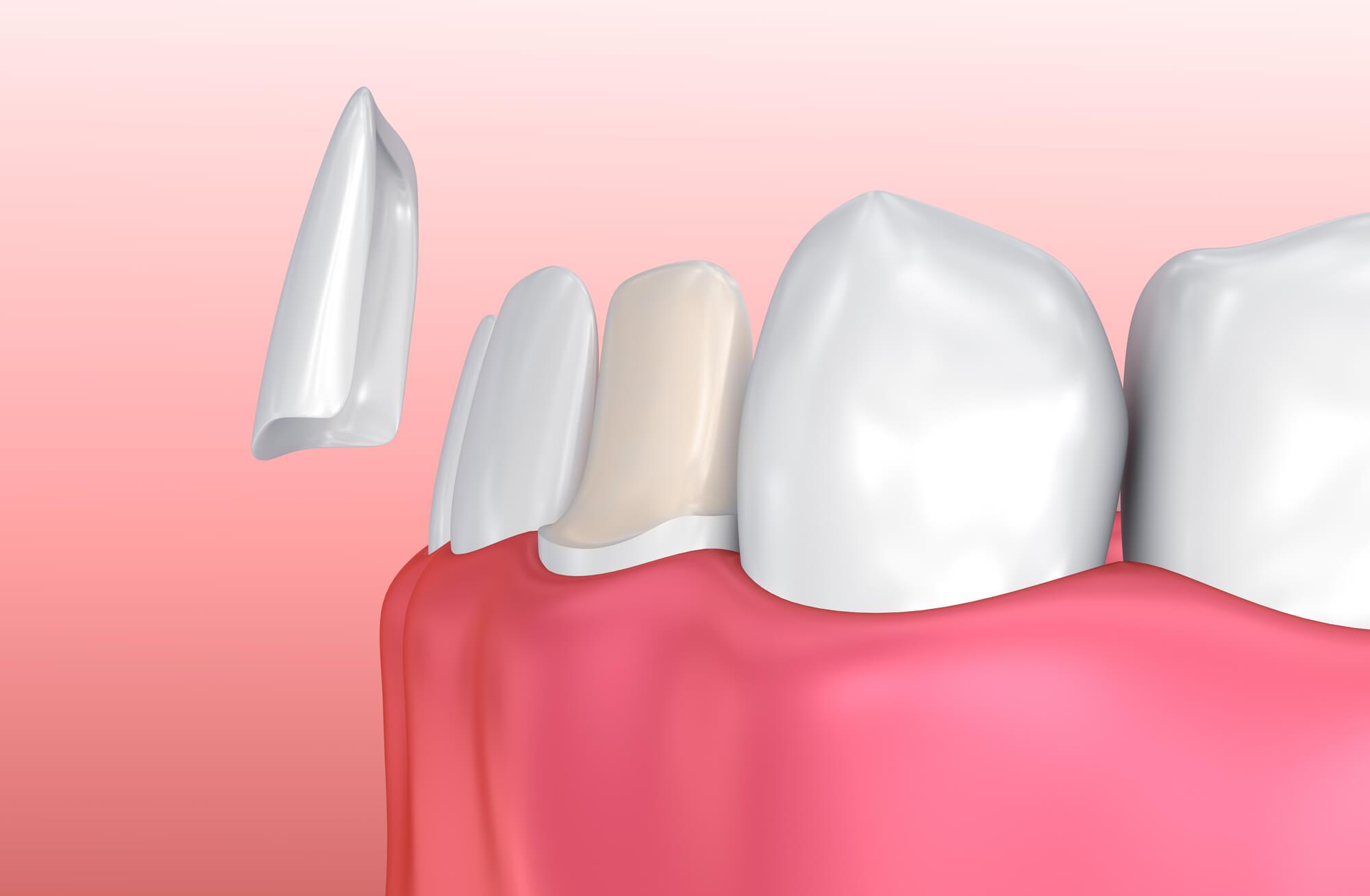 3D model of dental Veneers San Jose