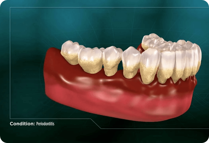 Choosing a treatment for periodontitis from a family dentist in San Jose.