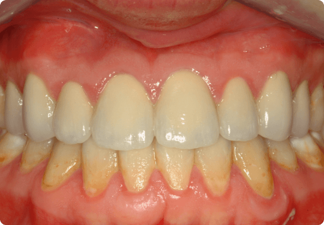 Improving your smile with dental veneers in San Jose.