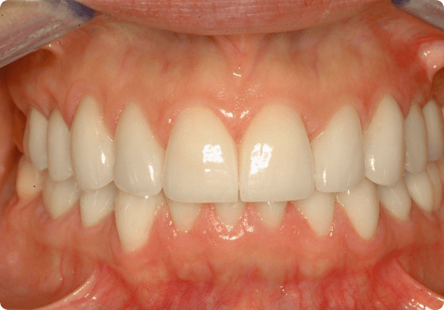 Finding the best cosmetic dentist in San Jose.