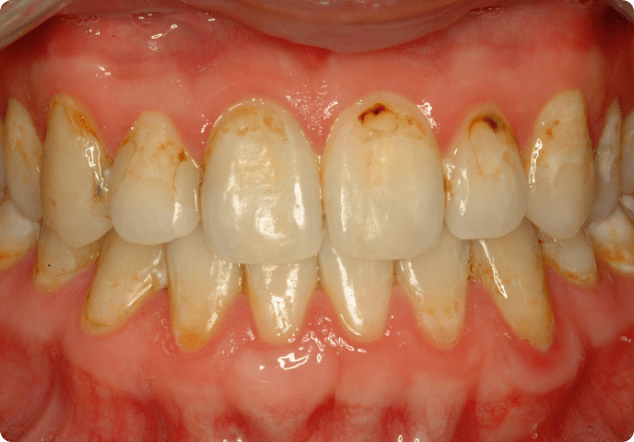 Understanding when you need cosmetic dentistry in San Jose.