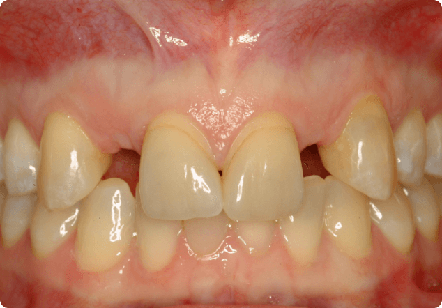 Learning if you need dental implants in San Jose.