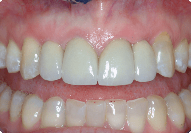 Benefiting from tooth whitening in San Jose.