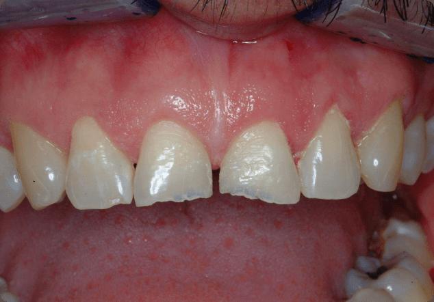 Benefiting from dental veneers in San Jose.