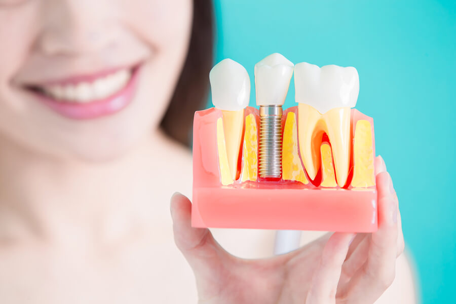 Finding out if you need dental implants in San Jose.