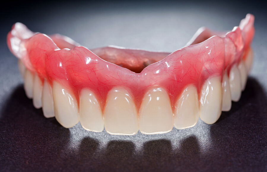 Restoring your smile with dentures in San Jose.